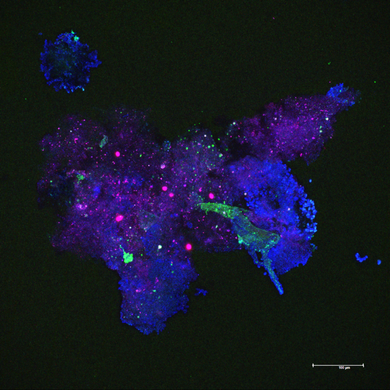 Particle aggregates habor rich microbial communities, shown here by confocal laser scanning microscopy. Blue: polysaccharide gel matrix of the aggregate, green: bacteria, pink/red: algal cells. Picture: Kathrin Busch